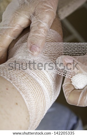 Arm bandage broken person, healing and first aid - stock photo
