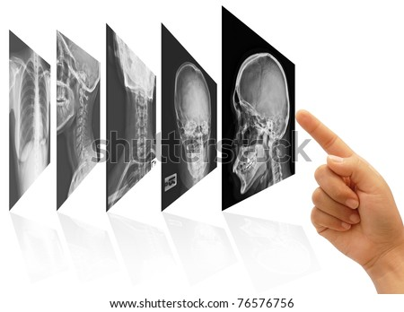 art work of doctor hand choosing x ray films