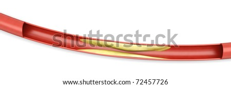 Arteriosclerosis. Plaques tightening an artery. 3D rendered Illsutration. Isolated on white. - stock photo