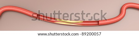 Arteriosclerosis. Plaques tightening an artery. 3D rendered Illustration. - stock photo