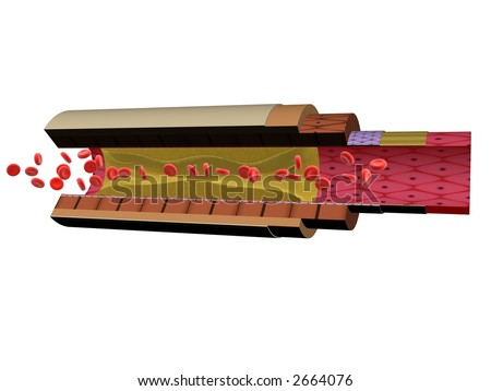 artery blockage - stock photo