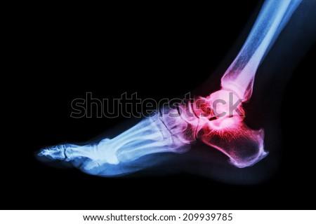 Arthritis at ankle joint (Gout , Rheumatoid arthritis)  - stock photo