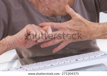 Arthritis pain in the joints of the knuckles. - stock photo