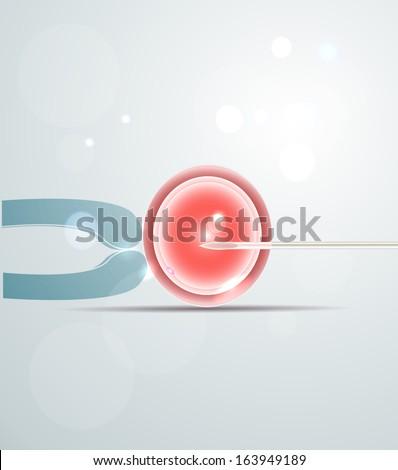 Artificial fertilization. Intracytoplasmic Sperm Injection. Medical illustration. - stock photo