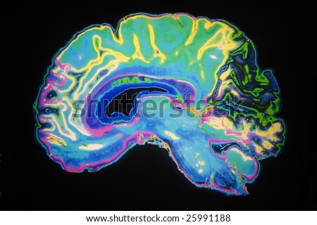 Artificially Colored MRI Scan Of Human Brain - stock photo