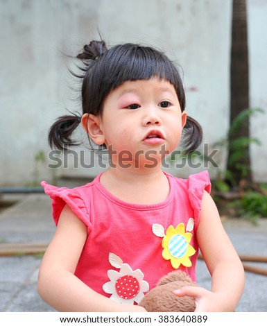 Asian baby girl eye swell, Allergy after mosquitoes biting at eye - stock photo