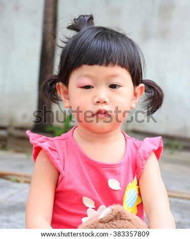 Asian baby girl eye swell, Allergy after mosquitoes biting at eye small girl - stock photo