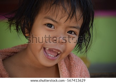 asian child girl  broken tooth with smile face