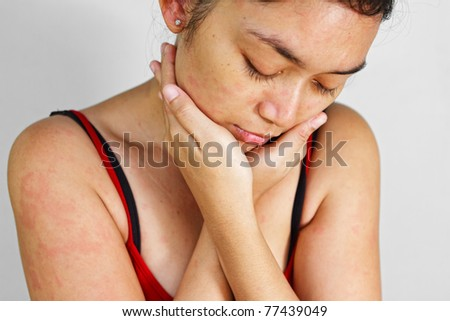 Asian ethnic adult female with allergic skin problem - stock photo