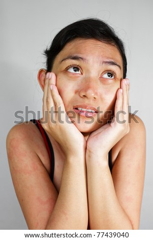 Asian ethnic young female feel sad having allergic skin problem - stock photo