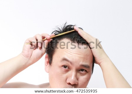 Asian man alopecia or hair loss, hand holding comb on bald head