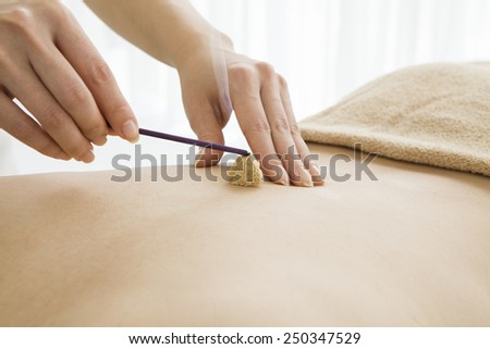 Asian receiving moxibustion treatment  - stock photo