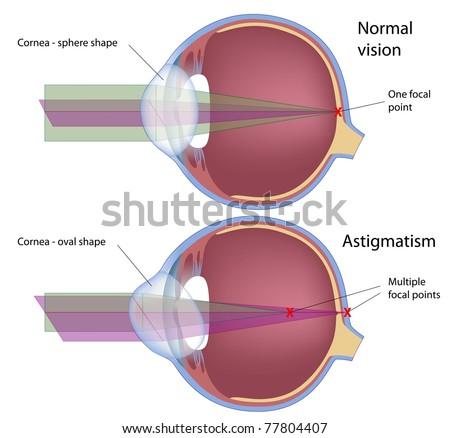 Astigmatism, a common eye defect - stock photo