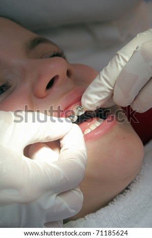 at the orthodontist - stock photo