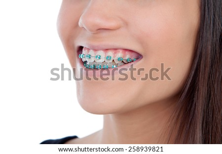 Attractive young woman with brackets isolated on a white backgroung - stock photo