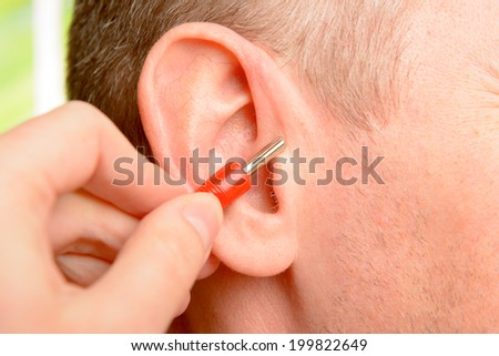 Auriculotherapy, or auricular therapy, or ear acupuncture, or auriculoacupuncture is a form of alternative medicine based on the idea that the ear is a microsystem which reflects the entire body. - stock photo