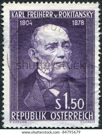 AUSTRIA - CIRCA 1954: A stamp printed in Austria, is dedicated to the 150th anniversary of Baron Carl von Rokitansky, circa 1954