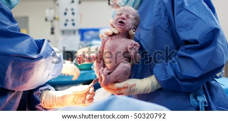 Baby being born via Caesarean Section coming out - stock photo
