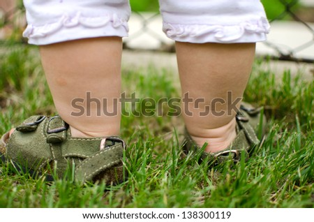 Baby legs in the grass with visible signs of eczema on skin - stock photo
