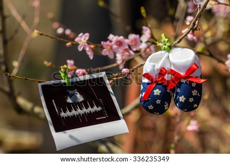 Baby slippers and ultrasound image hanging on a branch of blossoming tree - stock photo