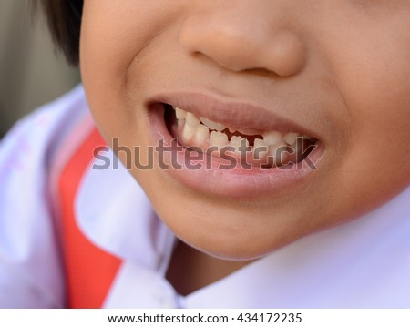 Baby teeth - stock photo