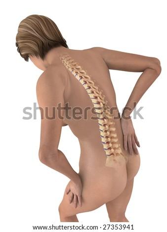 arthrose rückenschmerzen