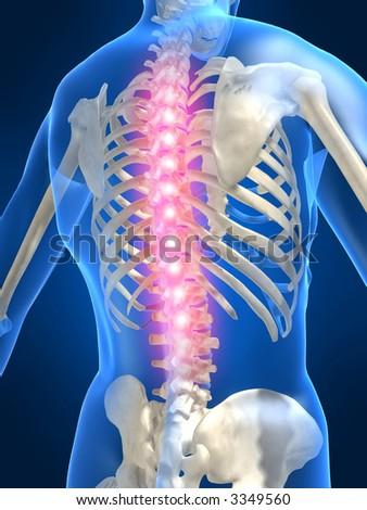 backache illustration - stock photo