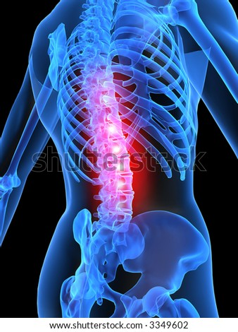 backache illustration - stock photo