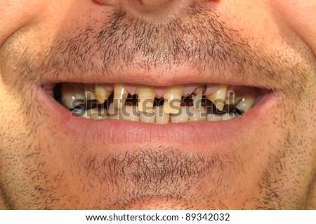 Bad teeth - stock photo