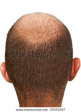 Bald hair head of adult men completely balding