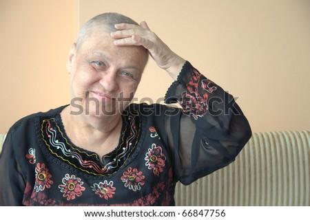 bald senior woman - stock photo