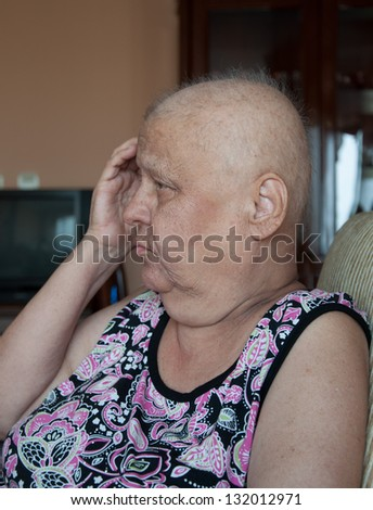 bald woman because of cancer - stock photo
