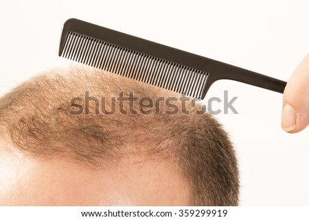 Baldness Alopecia man hair loss haircare medicine bald treatment transplantation - stock photo