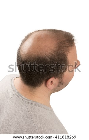 Baldness Alopecia man hair loss isolated - stock photo