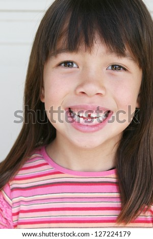 Beautiful Filipino Girl Smiling, Showing Bottom Middle Teeth Two Weeks after they were Surgically Pulled - stock photo