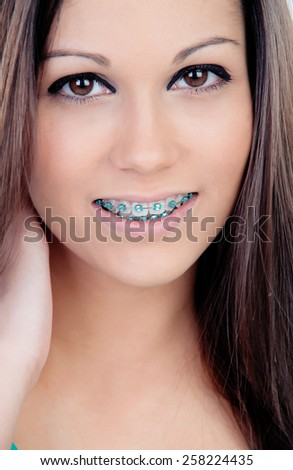 Beautiful portrait of a young girl with brackets and brown eyes - stock photo