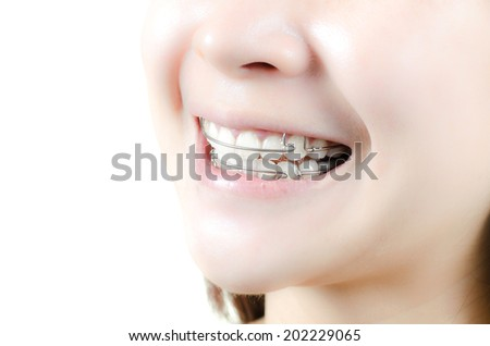 Beautiful smiling girl with retainer for teeth - stock photo