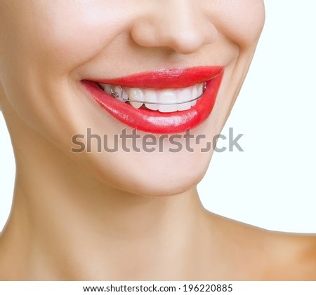 Beautiful smiling girl with retainer for teeth, and with red lipstick - stock photo