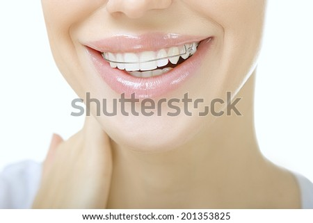 Beautiful smiling girl with retainer for teeth, close up - stock photo