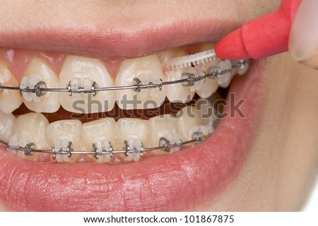 beautiful teeth with perfect oral hygiene - stock photo
