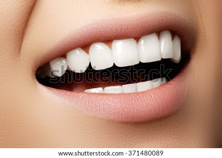 Beautiful wide smile of young fresh woman with great healthy white teeth. Closeup of woman smiling with prefect white teeth - stock photo