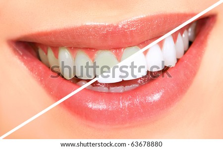 Beautiful young woman teeth. Whitening - stock photo