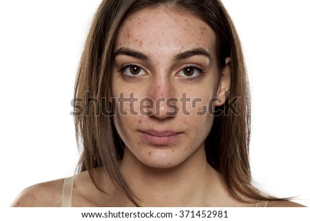 beautiful young women with problematic skin - stock photo