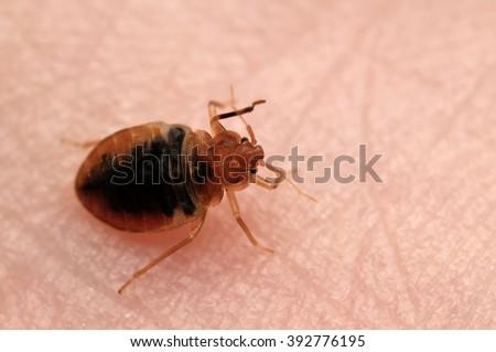 Bed bug Cimex lectularius on human skin. - stock photo