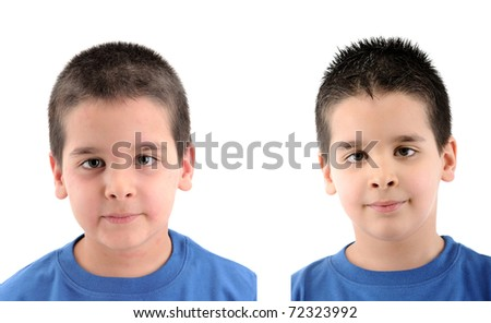 Before & After - close up image a little boy Â?Â?s face suffering severe urticaria - a series of URTICARIA images. - stock photo