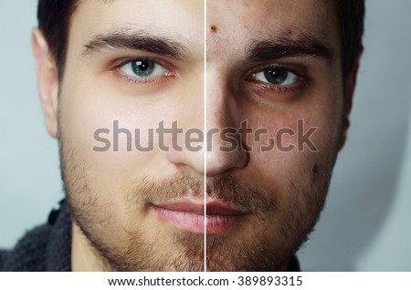 Before and after cosmetic operation. Young man portrait, isolated on a white background. Before and after cosmetic or plastic procedure, anti-age therapy, removal of acne, retouching. studio shot - stock photo