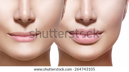 Before and after lip filler injections. Fillers. Lip augmentation Beautiful Perfect Lips. Sexy Mouth close up. Beauty young woman Lips. Close up over white background  - stock photo