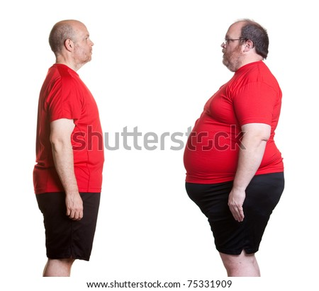 Before and after pictures of man with 16 months nutrition and exercise changes and losing 180 lbs. - stock photo