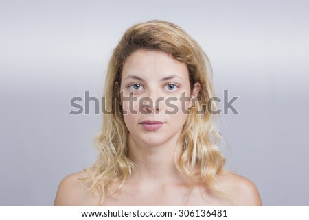 Before and after skin treatment of a blonde woman - stock photo