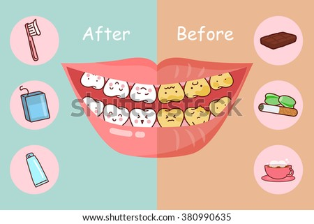 Before and after teeth, great for health dental care concept - stock photo